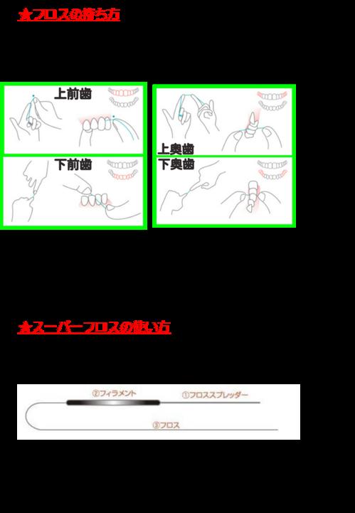 フロス 画像2.png